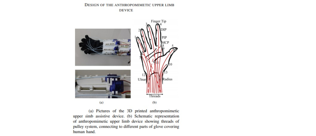 Upper limb exoskeleton-a portable anthropomimetic upper limb rehabilitation device